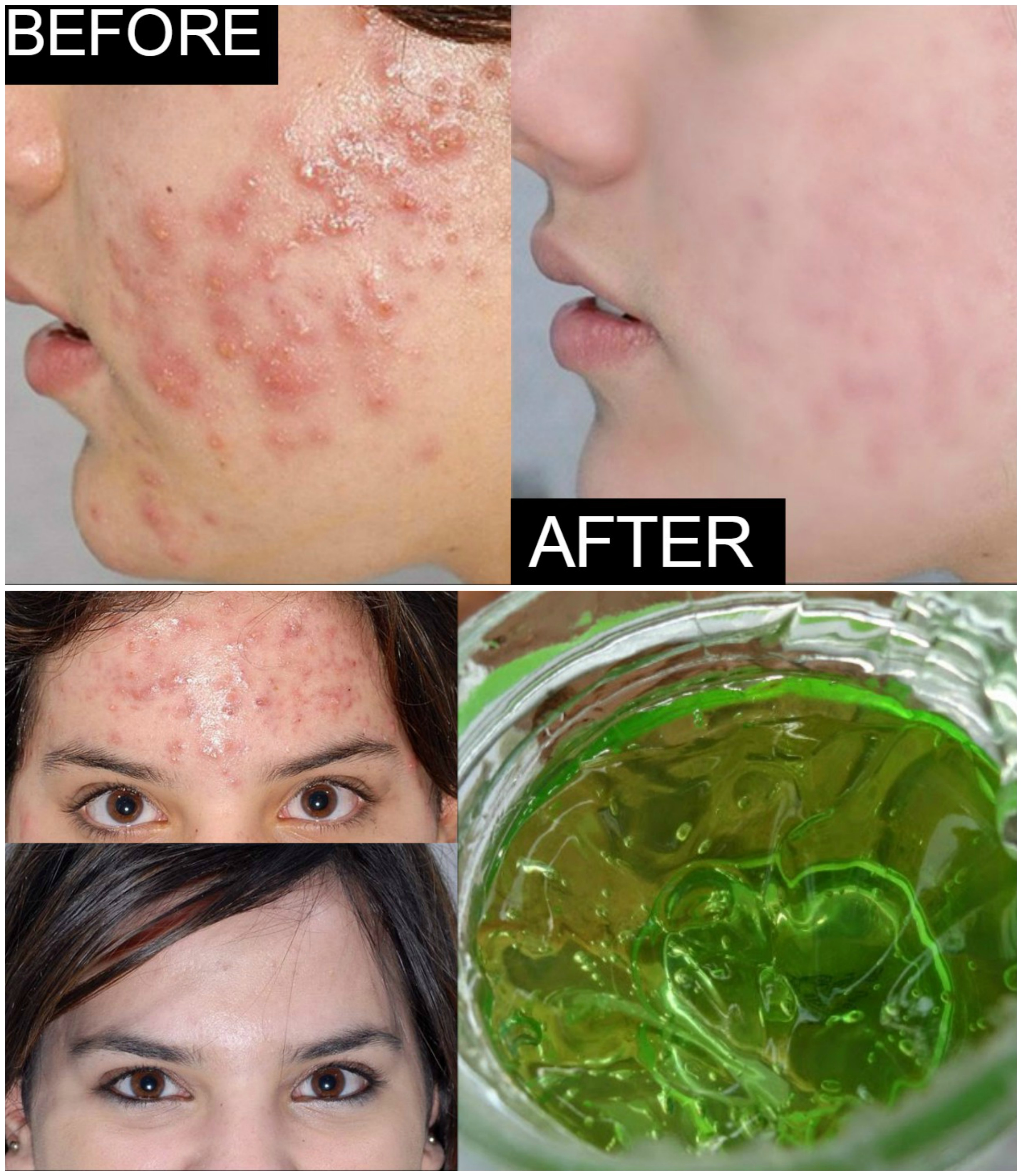 home remedy for acne and pimples - how to get rid of acne