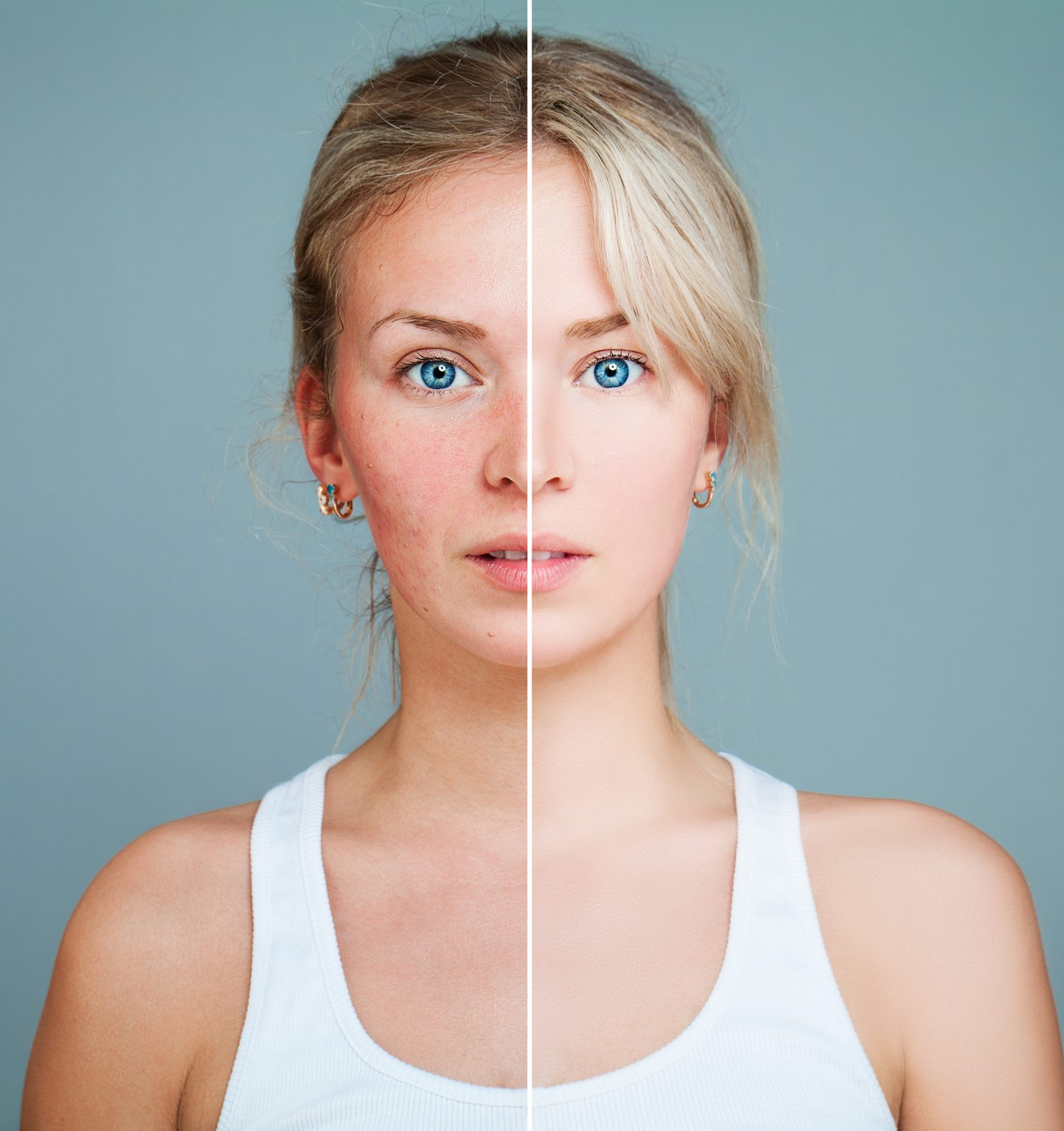 Best anti aging facial opinion
