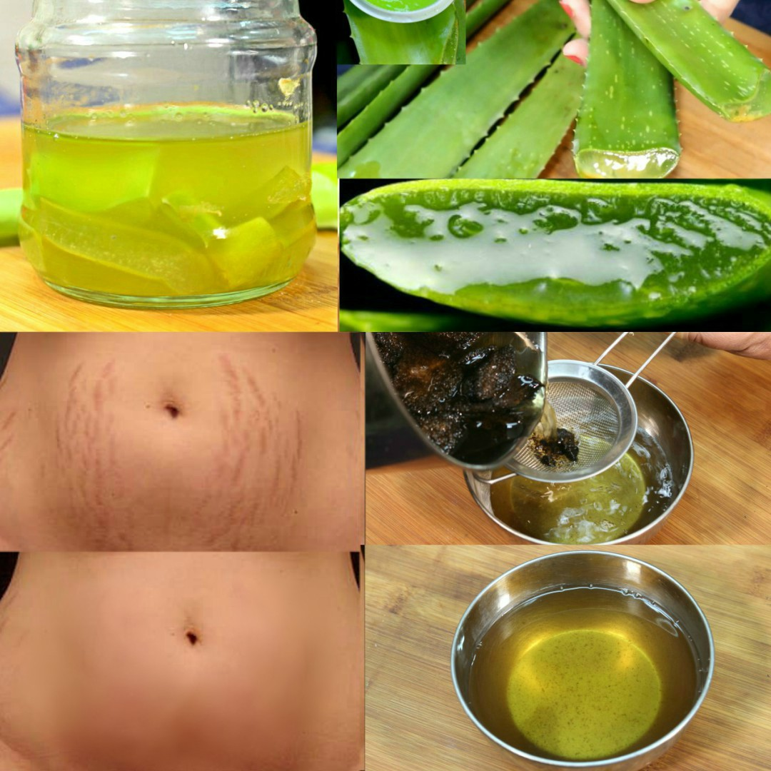 aloe vera for stretch marks