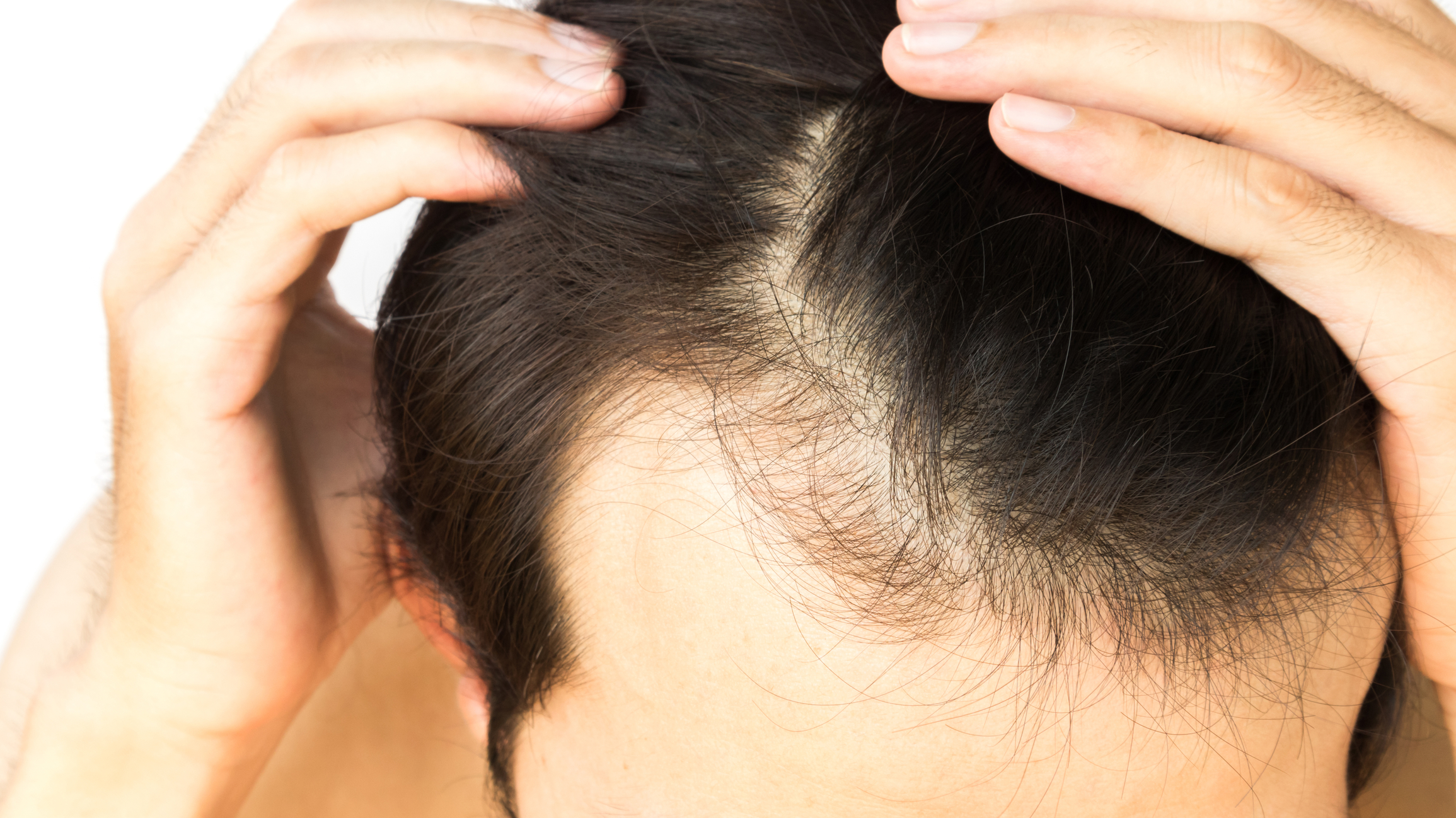 Best Natural Remedies For Male Hair Loss