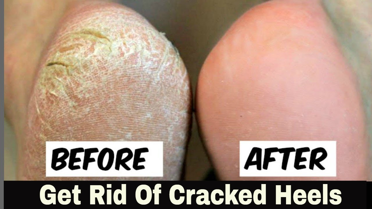 home remedy for cracked heels