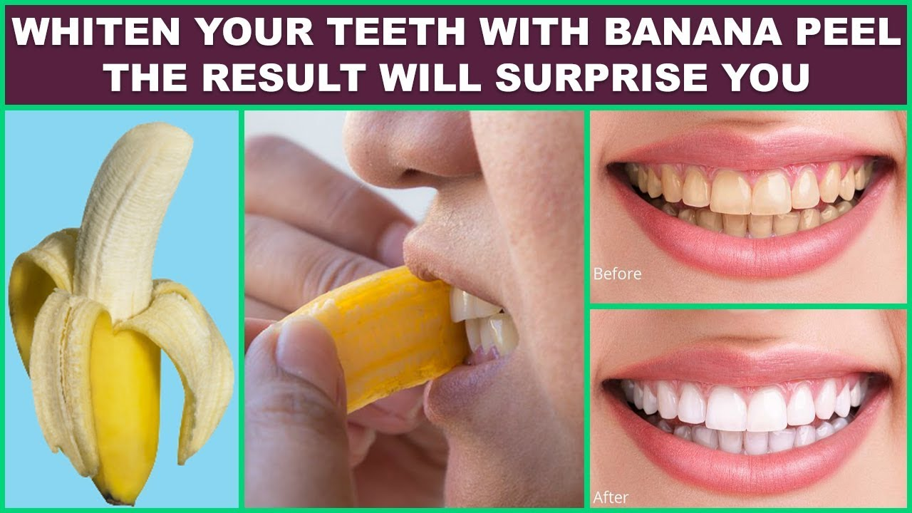banana peel for teeth