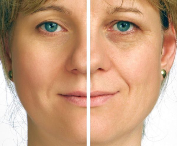 Skincare injectables