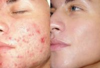 home remedy for acne and pimples