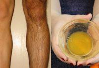 hair removal gel