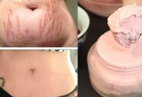 Stretch Marks Removal